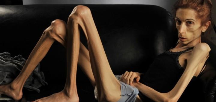 rachel-anoressia