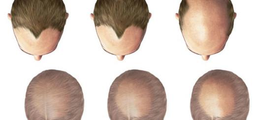 calvizie-caduta-capelli